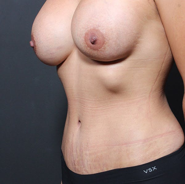 Mommy Makeover Gallery - Patient 14089764 - Image 2