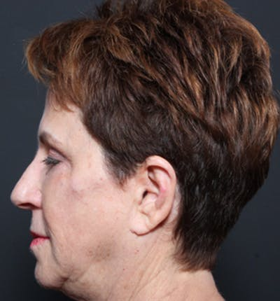 Injectables Gallery - Patient 14089760 - Image 6
