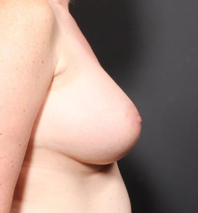 Breast Augmentation Gallery - Patient 14089756 - Image 10