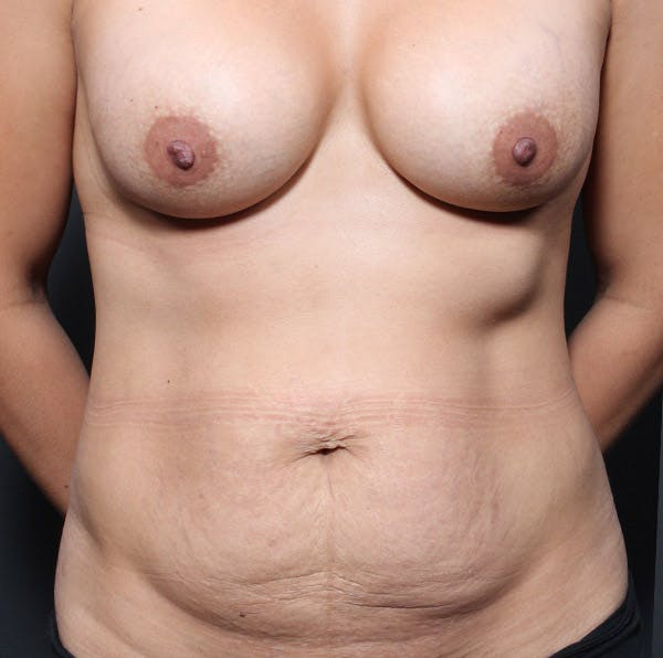 Mommy Makeover Gallery - Patient 14089764 - Image 3