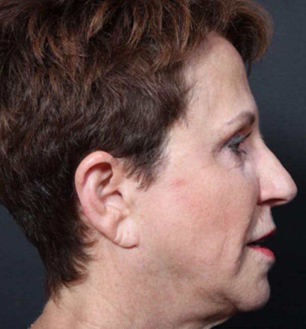 Injectables Gallery - Patient 14089760 - Image 7