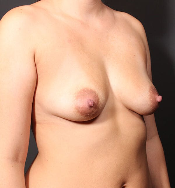 Breast Augmentation Gallery - Patient 14089761 - Image 1