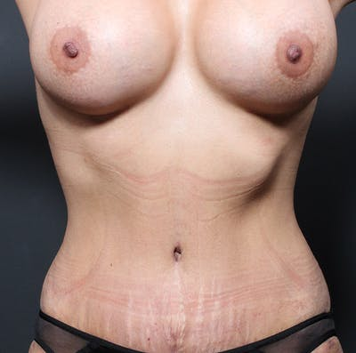 Mommy Makeover Gallery - Patient 14089764 - Image 4