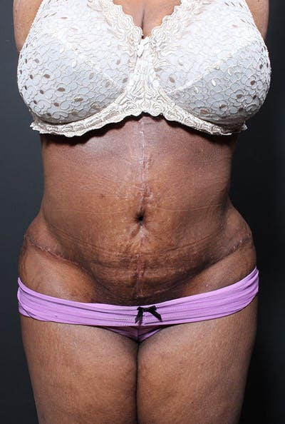 Plus Size Tummy Tuck® Gallery - Patient 14089762 - Image 2