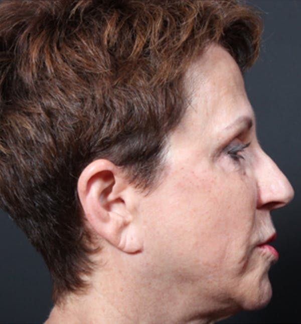 Injectables Gallery - Patient 14089760 - Image 8