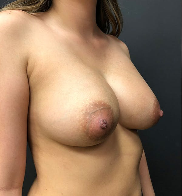 Breast Augmentation Gallery - Patient 14089761 - Image 2