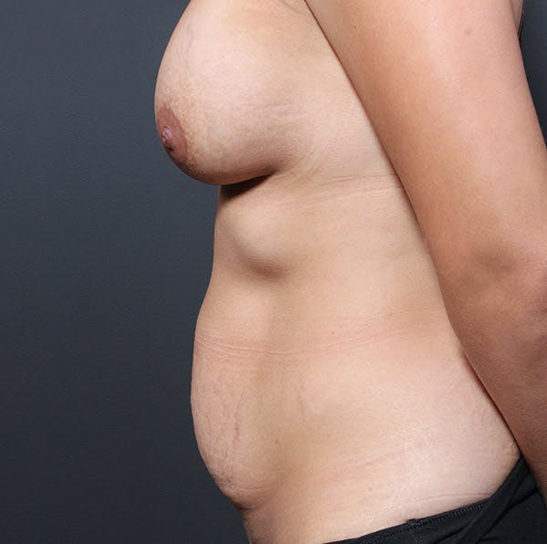 Mommy Makeover Gallery - Patient 14089764 - Image 5