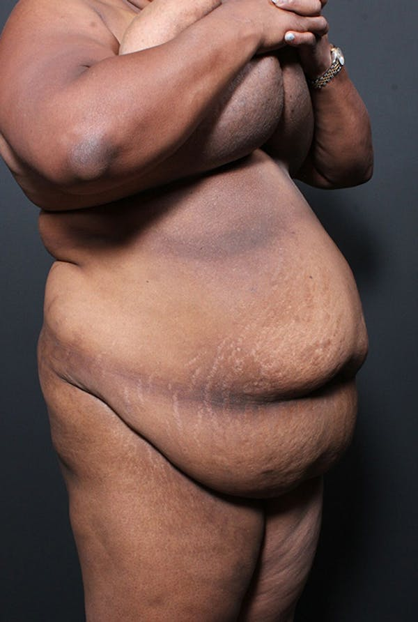 Plus Size Tummy Tuck® Gallery - Patient 14089762 - Image 3
