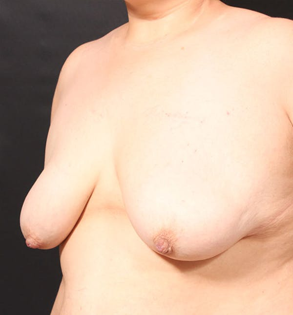 Breast Lift Mastopexy Gallery - Patient 14089768 - Image 1