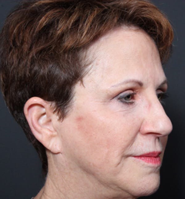 Injectables Gallery - Patient 14089760 - Image 9