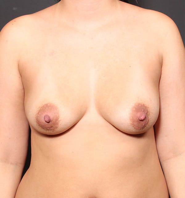 Breast Augmentation Gallery - Patient 14089761 - Image 3