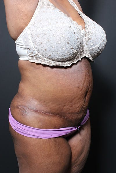 Plus Size Tummy Tuck® Gallery - Patient 14089762 - Image 4