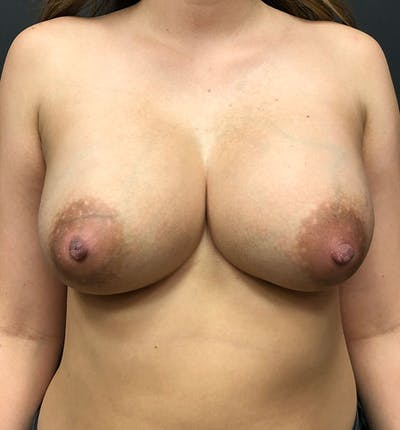Breast Augmentation Gallery - Patient 14089761 - Image 4