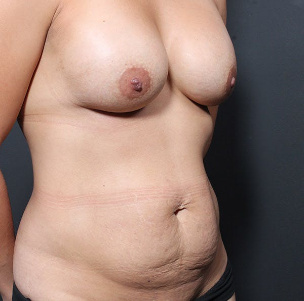 Mommy Makeover Gallery - Patient 14089764 - Image 7