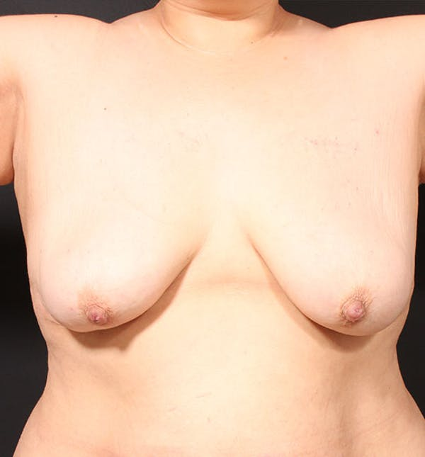 Breast Lift Mastopexy Gallery - Patient 14089768 - Image 3