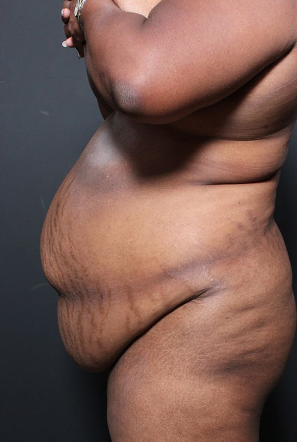 Plus Size Tummy Tuck® Gallery - Patient 14089762 - Image 5
