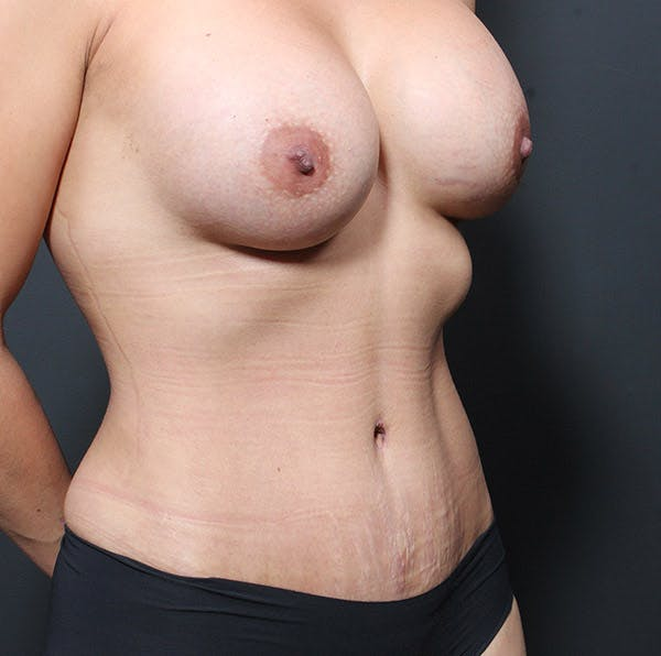 Mommy Makeover Gallery - Patient 14089764 - Image 8