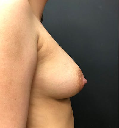 Breast Augmentation Gallery - Patient 14089761 - Image 6
