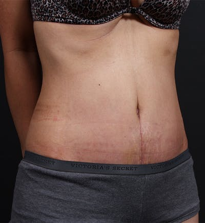 Liposuction Gallery - Patient 14089767 - Image 2