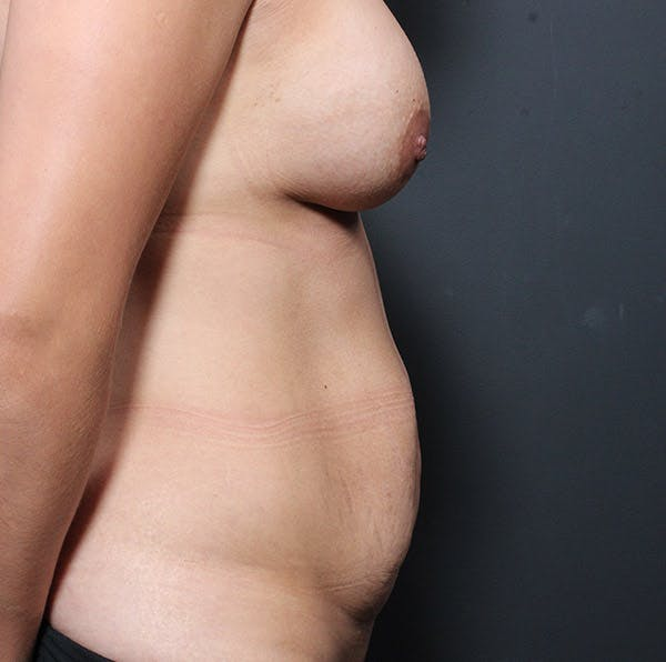 Mommy Makeover Gallery - Patient 14089764 - Image 9