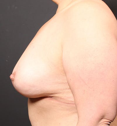 Breast Lift Mastopexy Gallery - Patient 14089768 - Image 6