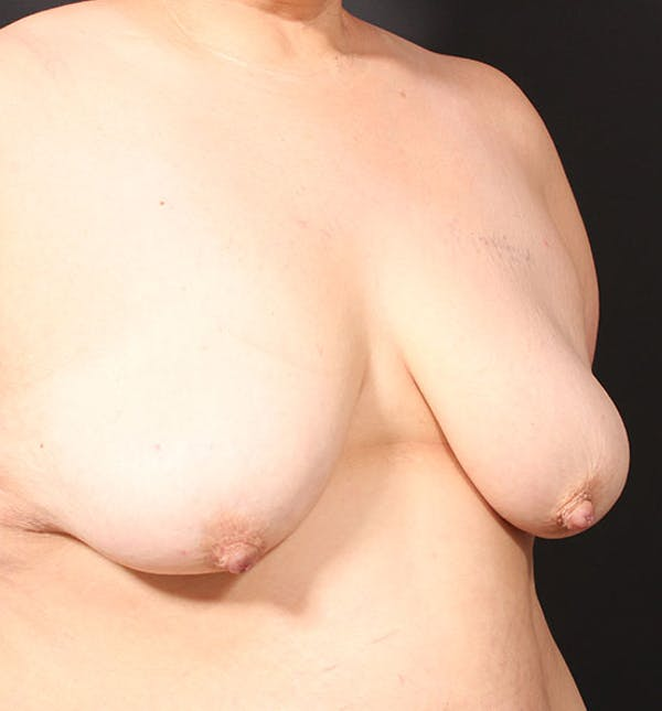 Breast Lift Mastopexy Gallery - Patient 14089768 - Image 7