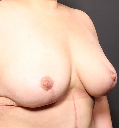 Breast Lift Mastopexy Gallery - Patient 14089768 - Image 8