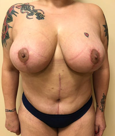 Plus Size Tummy Tuck® Gallery - Patient 14089765 - Image 2