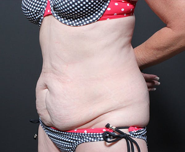 Mommy Makeover Gallery - Patient 14089770 - Image 1