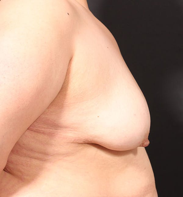 Breast Lift Mastopexy Gallery - Patient 14089768 - Image 9