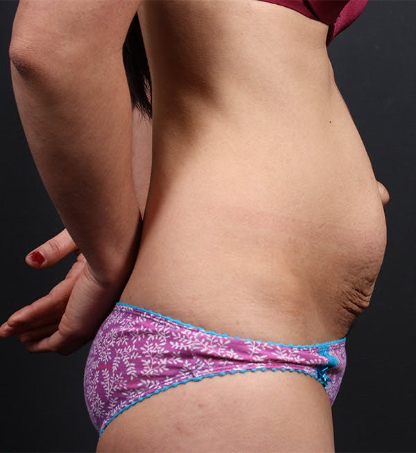 Liposuction Gallery - Patient 14089767 - Image 5