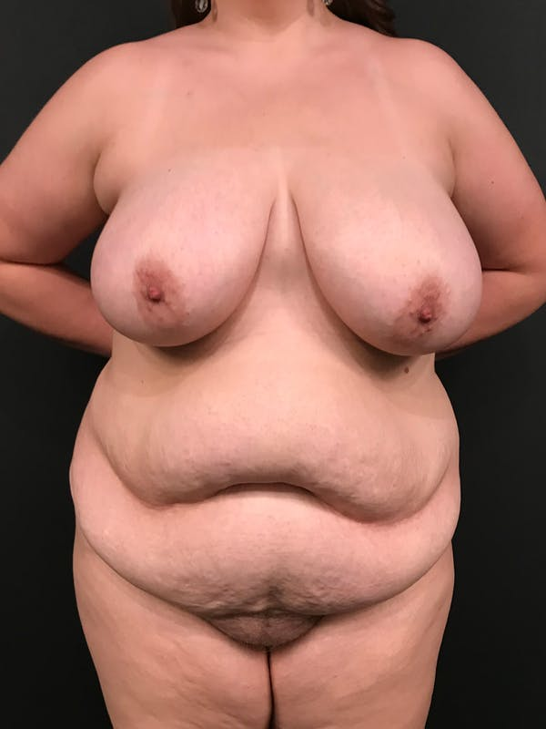 Plus Size Tummy Tuck® Gallery - Patient 14089776 - Image 1