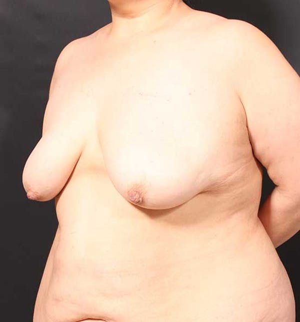 Breast Lift Mastopexy Gallery - Patient 14089773 - Image 1