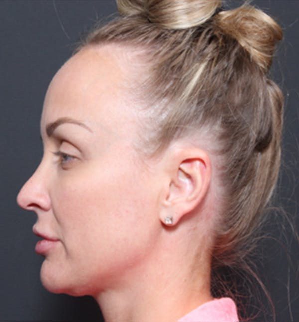 Injectables Gallery - Patient 14089769 - Image 2