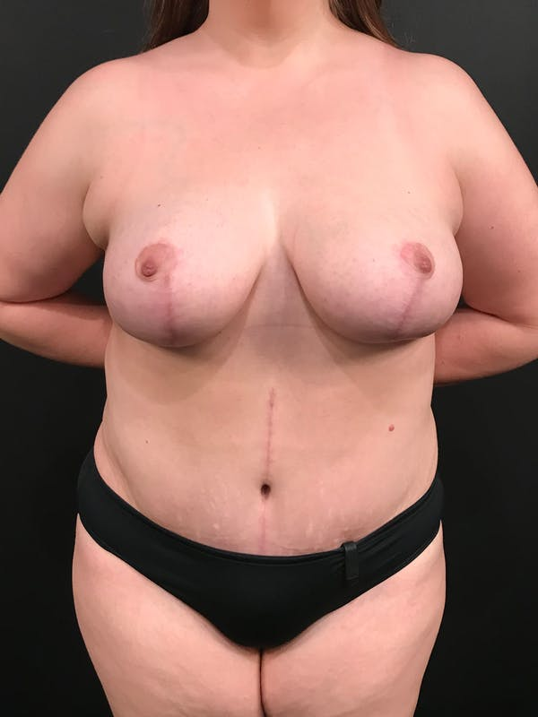 Plus Size Tummy Tuck® Gallery - Patient 14089776 - Image 2