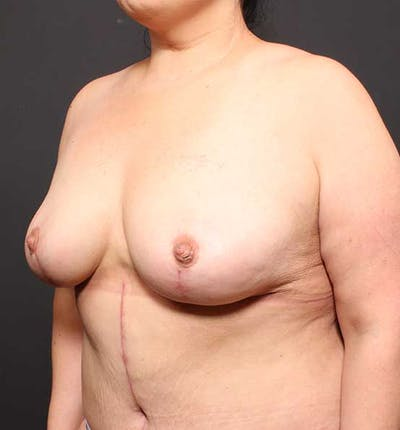 Breast Lift Mastopexy Gallery - Patient 14089773 - Image 2