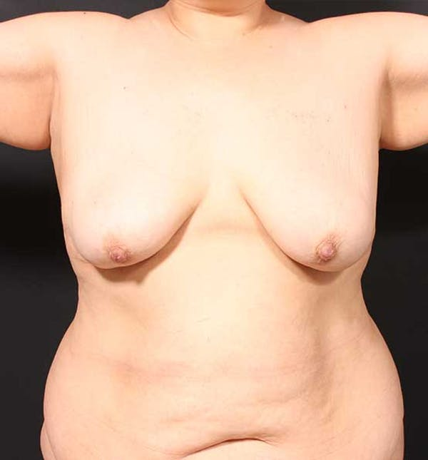 Breast Lift Mastopexy Gallery - Patient 14089773 - Image 3