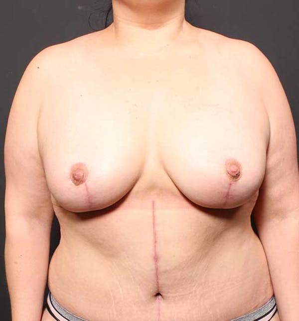 Breast Lift Mastopexy Gallery - Patient 14089773 - Image 4