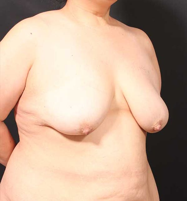 Breast Lift Mastopexy Gallery - Patient 14089773 - Image 7