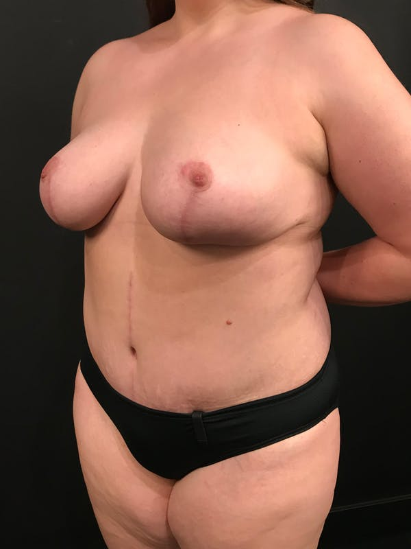 Plus Size Tummy Tuck® Gallery - Patient 14089776 - Image 4