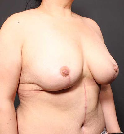 Breast Lift Mastopexy Gallery - Patient 14089773 - Image 8