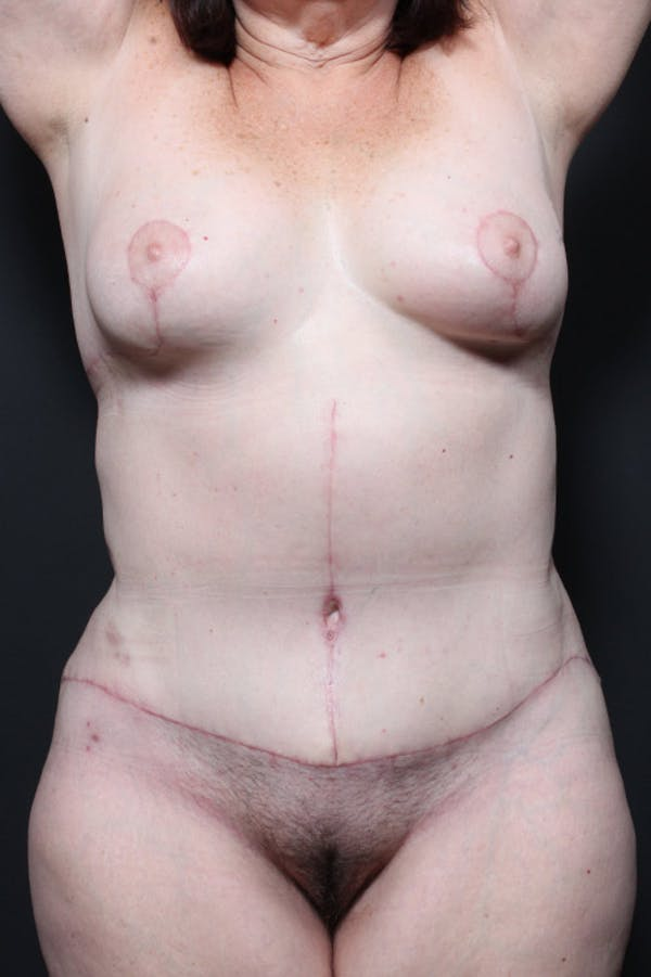 Mommy Makeover Gallery - Patient 14089774 - Image 4