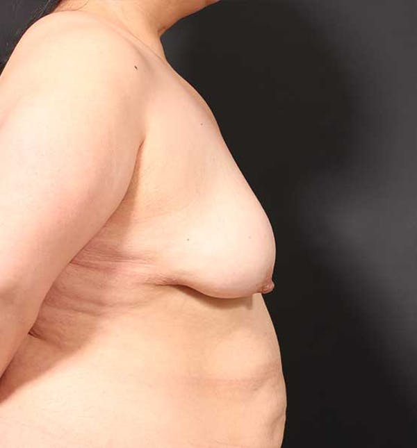 Breast Lift Mastopexy Gallery - Patient 14089773 - Image 9