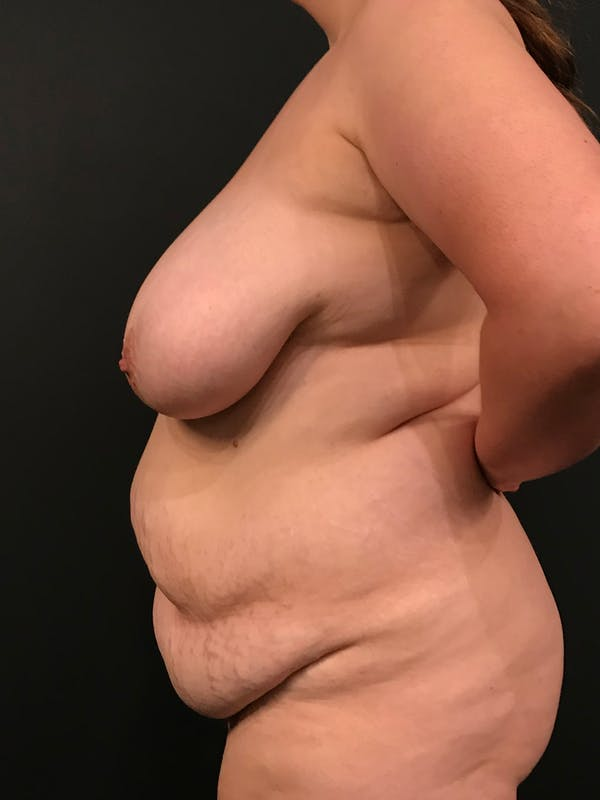 Plus Size Tummy Tuck® Gallery - Patient 14089776 - Image 5