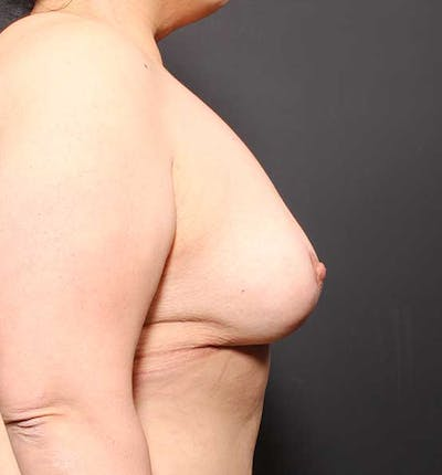 Breast Lift Mastopexy Gallery - Patient 14089773 - Image 10