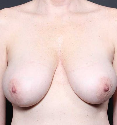 Breast Lift Mastopexy Gallery - Patient 14089775 - Image 1