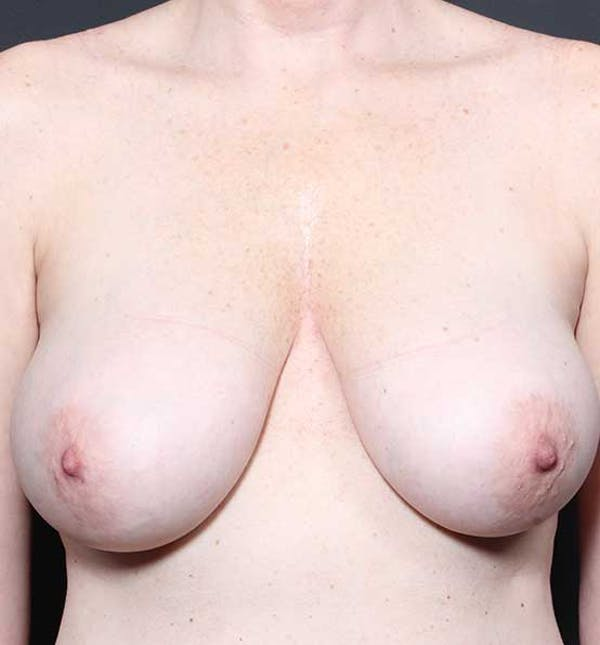 Breast Lift Mastopexy Gallery - Patient 14089775 - Image 1