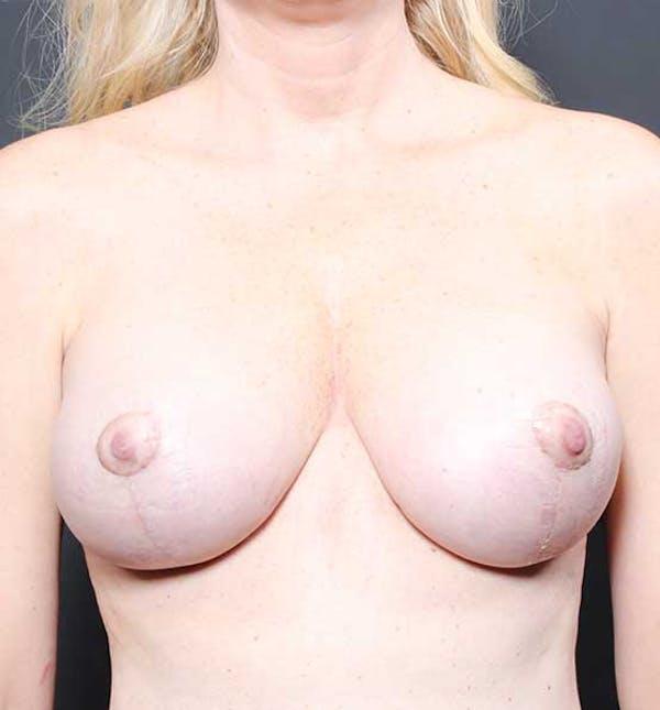Breast Lift Mastopexy Gallery - Patient 14089775 - Image 2