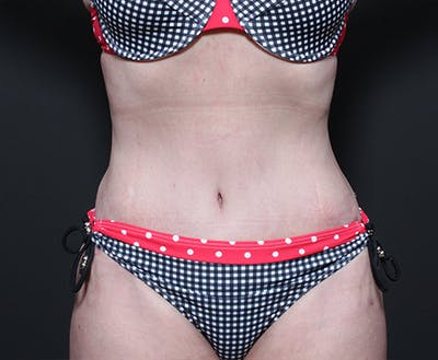 Liposuction Gallery - Patient 14089778 - Image 4