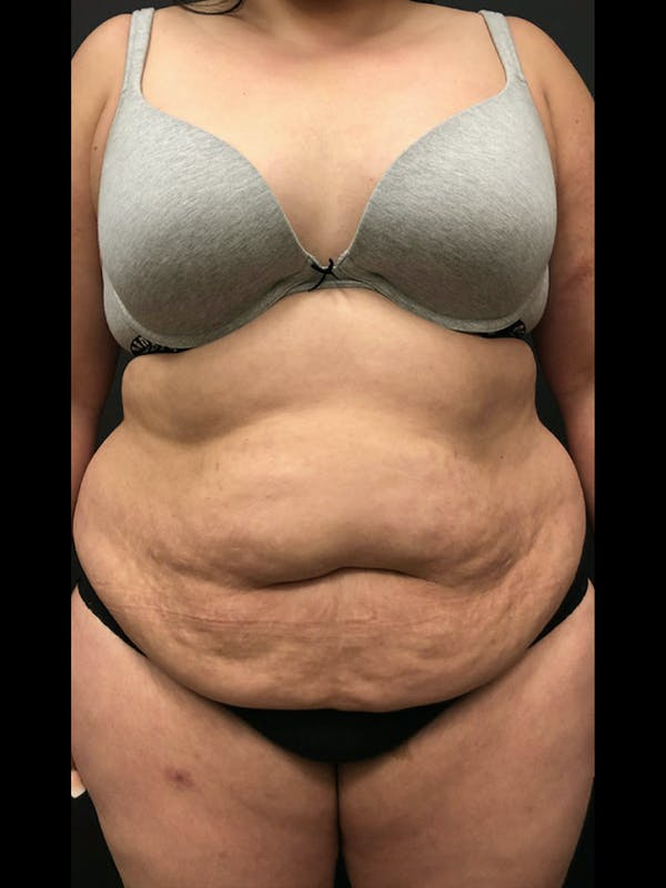 Plus Size Tummy Tuck® Gallery - Patient 14089780 - Image 1
